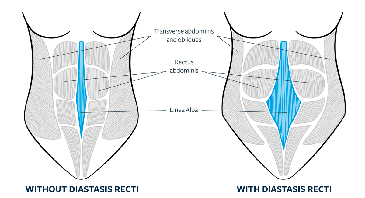 Does Everyone Get Diastasis Recti During Pregnancy Girls Gone Strong