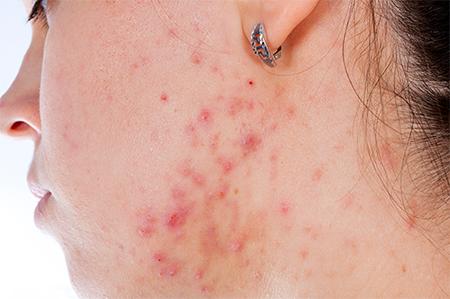 acne-woman-450x299