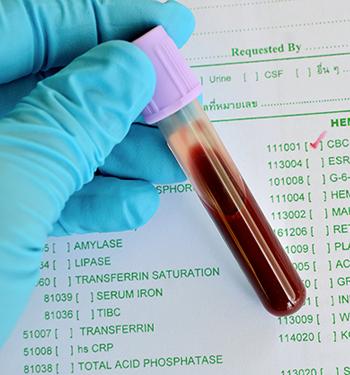 blood-test-tube-350x375