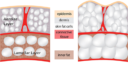 cellulite-layers-450x226