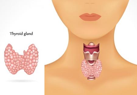 hashimoto-thyroid-gland-450x311