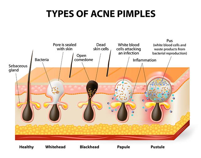 skin-acne-diagram-640x505